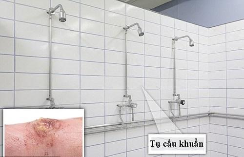Nhà vệ sinh, nơi nguồn bệnh tiềm ẩn